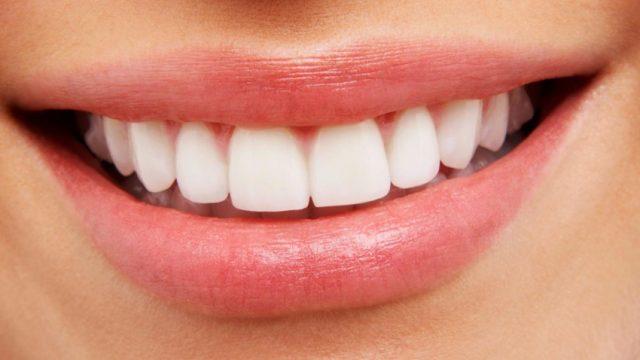 Mutuelle dentaire : comprendre pour mieux choisir